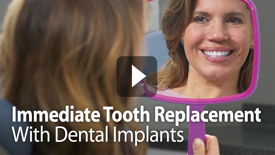 immediate toothe replacement with dental implants