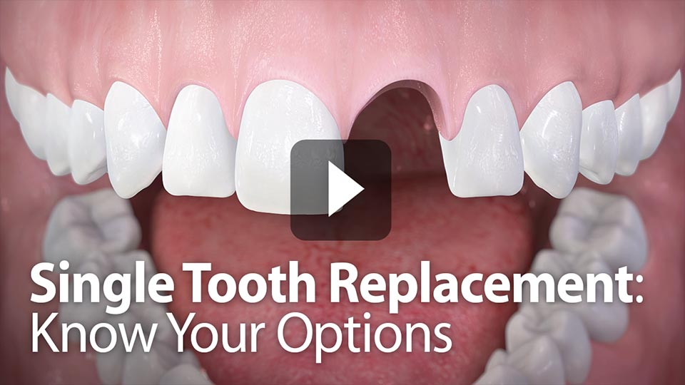 your options on single tooth replacement